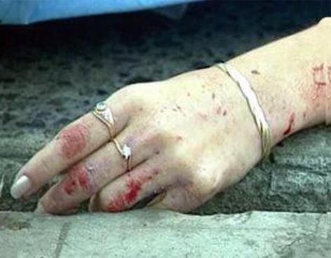 Se registra nuevo feminicidio, esta vez en Arenoso de SFM