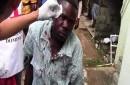 Un haitiano recibió una pedrada en la cabeza en Dajabón mientra estaba en una fila para aplicar para el plan de Regularización de Extranjeros.