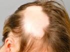 Los métodos ofrecidos por Flores también son  útiles para las personas que padecen  alopecia o tricomanía(obsesión por arrancarse el cabello).