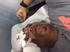 El fotógrafo de elCaribe, Danny Polanco tras ser herido de perdigón por un agente policial.